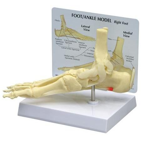 Ankle/Foot Plantar Fasciitis W/ Key Card