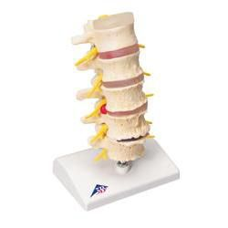 Stages Of Disc Prolapse & Vertebral Degeneration
