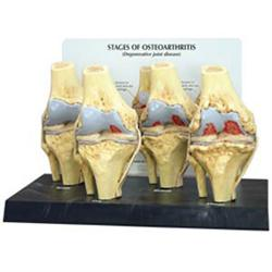 Four Stage Osteoarthritis Knee Model