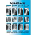 Spinal Decay Chart, Laminated
