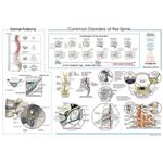 "Common Disorders Of The Spine Poster 20"" X 30"""