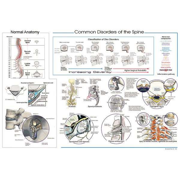 Common Disorders Of The Spine Posters For Sale 20 X 30