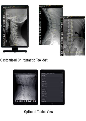 Customized Chiropractic PACS Tool Set