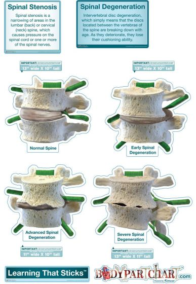 BodyPartChart Spinal Degeneration