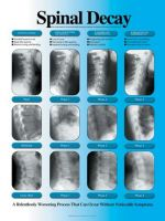 Spinal Decay Chart & Spinal Decay X-ray Laminated Poster